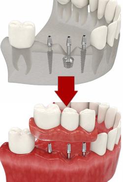 Компрессионная имплантация зубов что это такое
