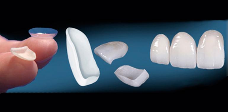 Керамические виниры для зубов отзывы