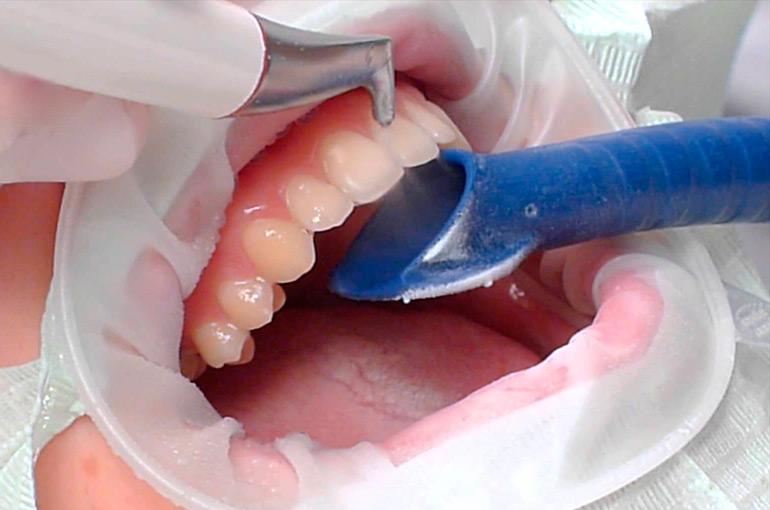 Чистка зубов: ультразвуковая, air flow, лазерная Гид по Стоматологии