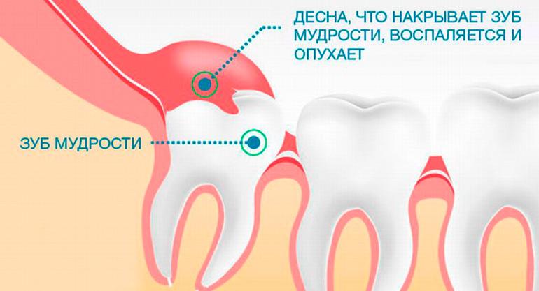 Зуб мудрости болит и гной есть
