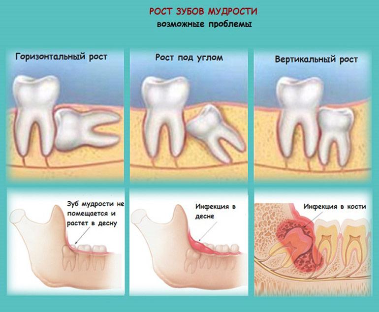 Что делать если зубы мудрые болят