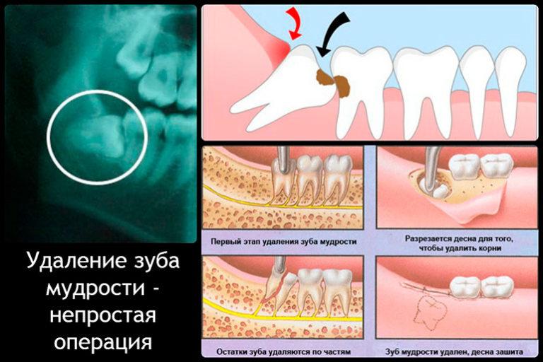 После того как вырвала зуб не останавливается кровь что делать