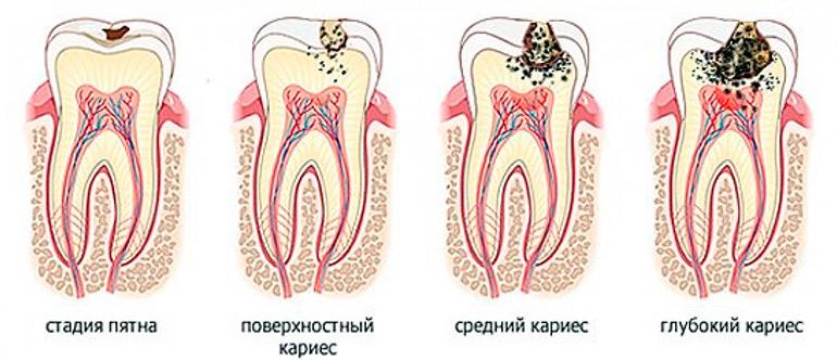 Если болит зуб что надо делать в