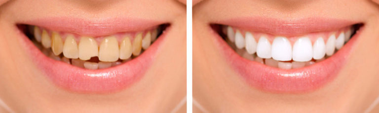 Реставрация поврежденных зубов