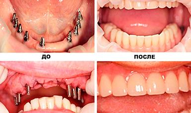 базальная имплантация зубов фото этапов