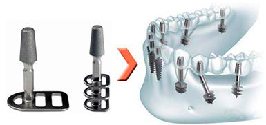 bazalnaya-implantaciya-3