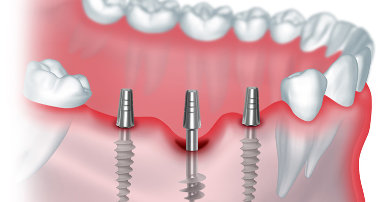 Картинки по запросу Зубные имплантаты в Полтаве