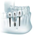 Базальная имплантация зубов – преимущества метода, отзывы За и Против