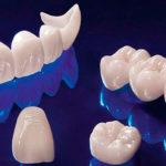 Безметалловая керамика в стоматологии: преимущества и показания к протезированию