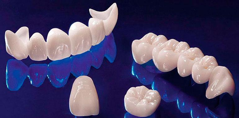 Безметалловые коронки в протезировании и их особенности