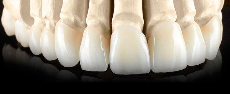 безметалловая керамика в стоматологии