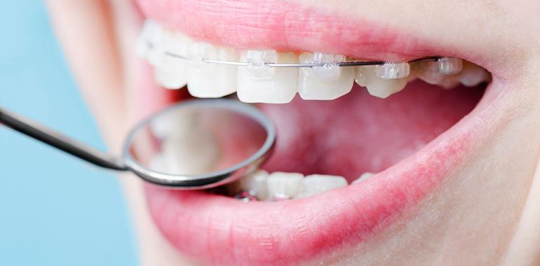 Украина брекет для выравнивания зубов