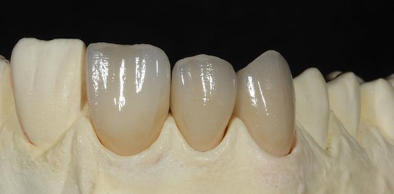 протезирование зубов винирами краснодар