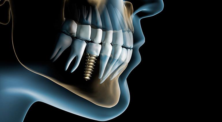 implantacija-2