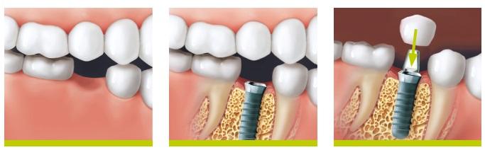 implantacija-4
