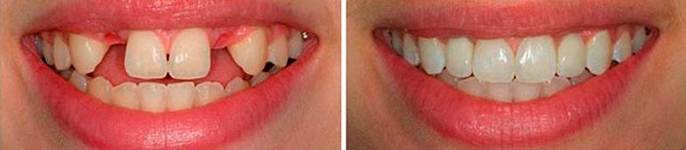 имплантация зубов харьков