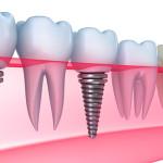 Имплантация зубов: показания и противопоказания, цена и отзывы
