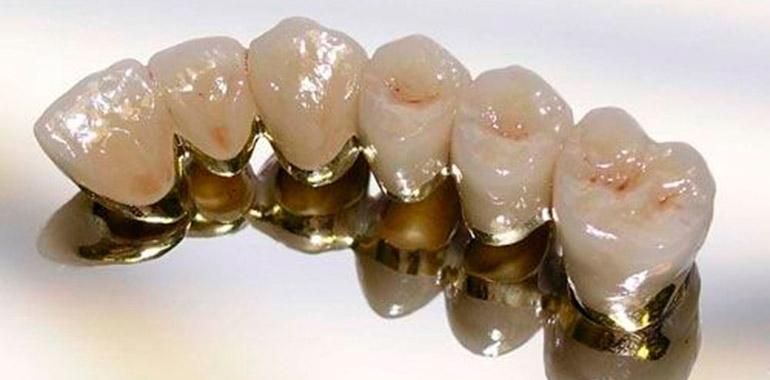 В какой стоматологии отбелить зубы отзывы