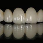 Металлокерамические коронки: фото, цена, отзывы