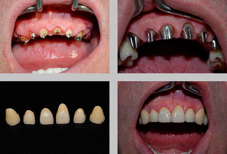 Установка металлокерамических коронок: фото До и После