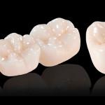 Оксид циркония в стоматологии: преимущества, показания и цены на циркониевые коронки