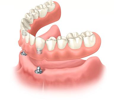 съемный зубной протез на имплантах