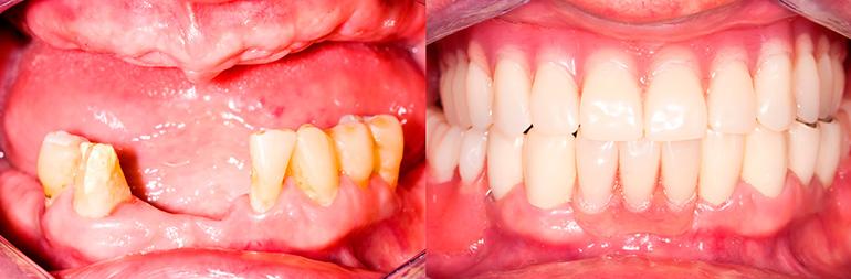 съемное протезирование зубов фото