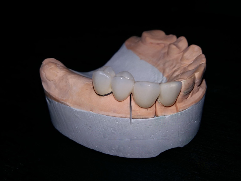 металлокерамика зубы фото
