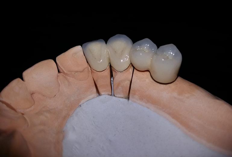 зубы металлокерамика фото