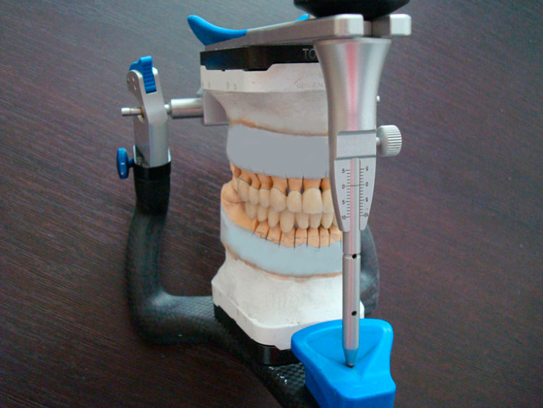 протезирование зубов металлокерамика фото