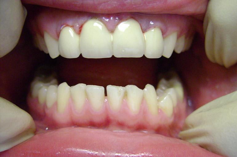 фото металлокерамических зубов