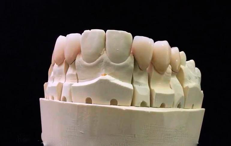 металлокерамические зубы фото