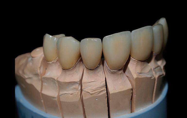 протезирование металлокерамикой фото