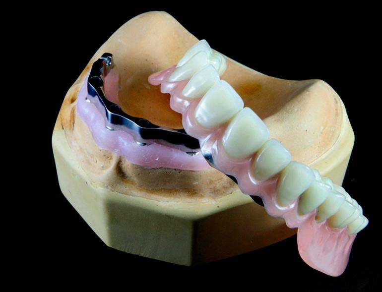 зубные протезы съемные фото