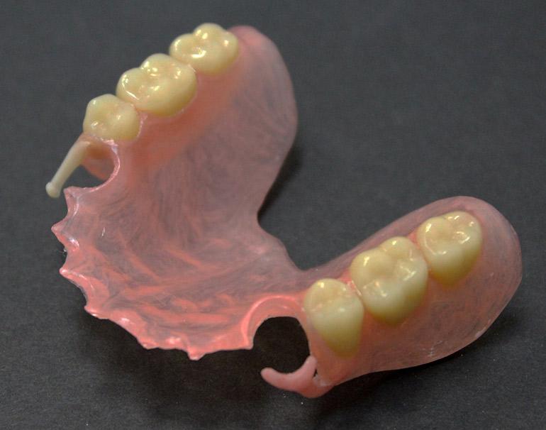 нейлоновый зубной протез фото