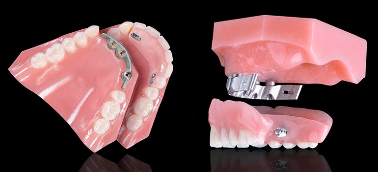 съемный зубной протез фото