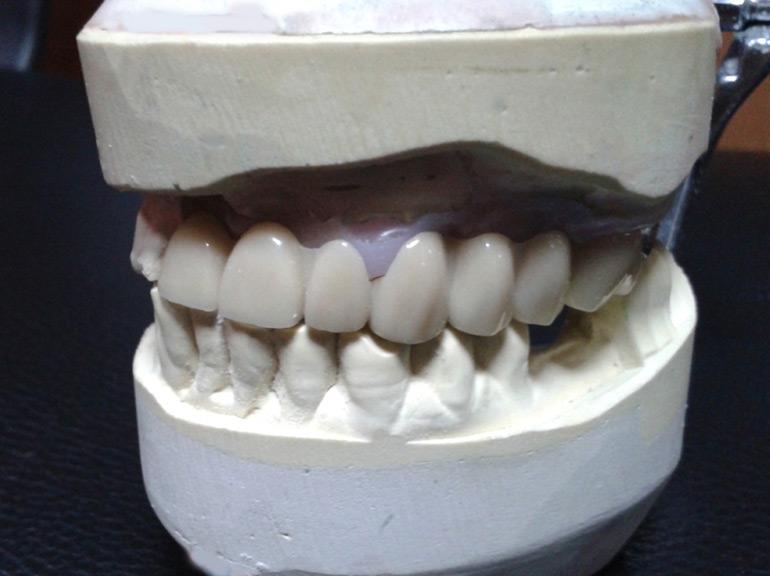 экспресс имплантация зубов фото