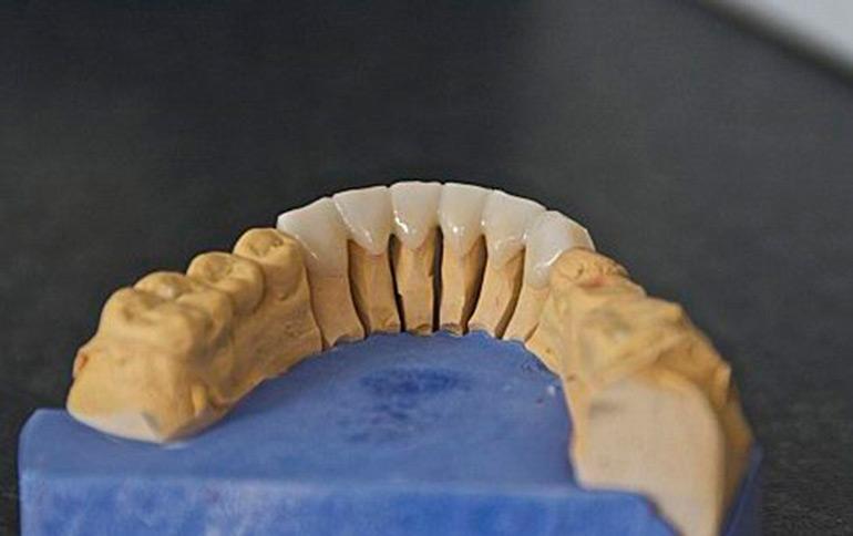 коронки из оксида циркония фото