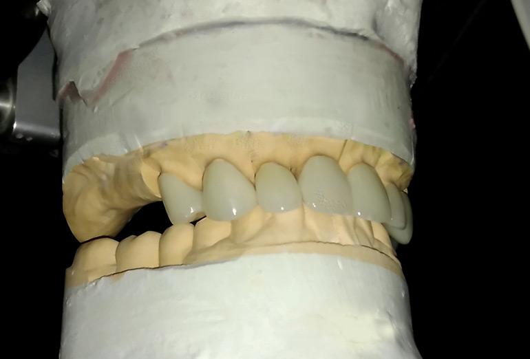 зубы из циркония фото