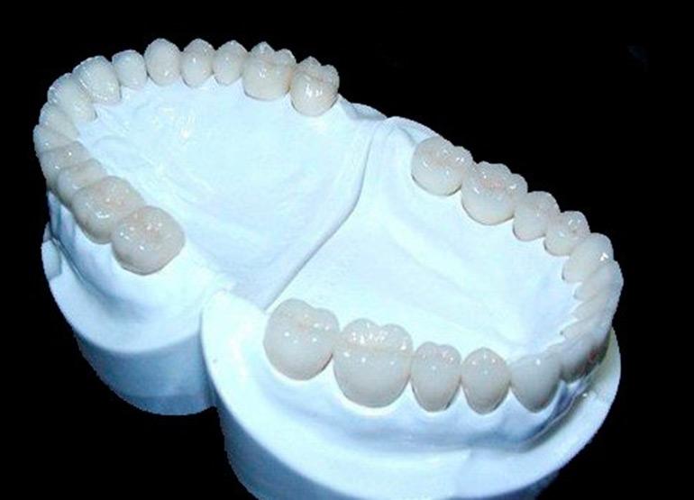 протезирование безметалловой керамикой фото