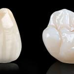 Фото зубных протезов из безметалловой керамикой
