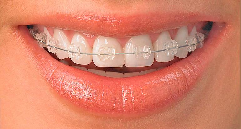 выравнивание зубов фото