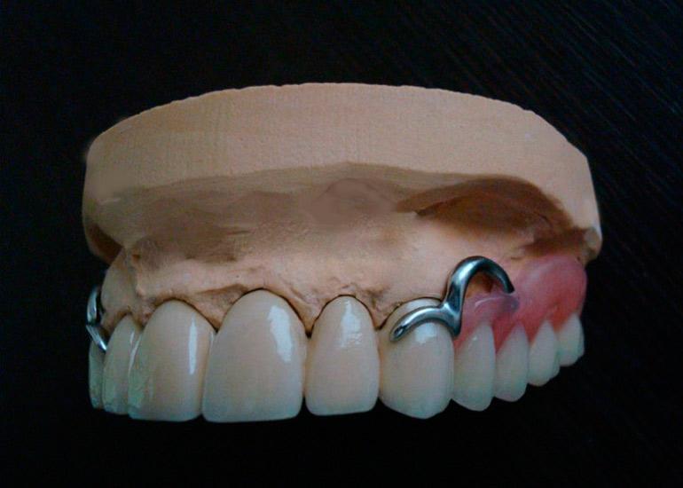 бюгельные зубные протезы фото