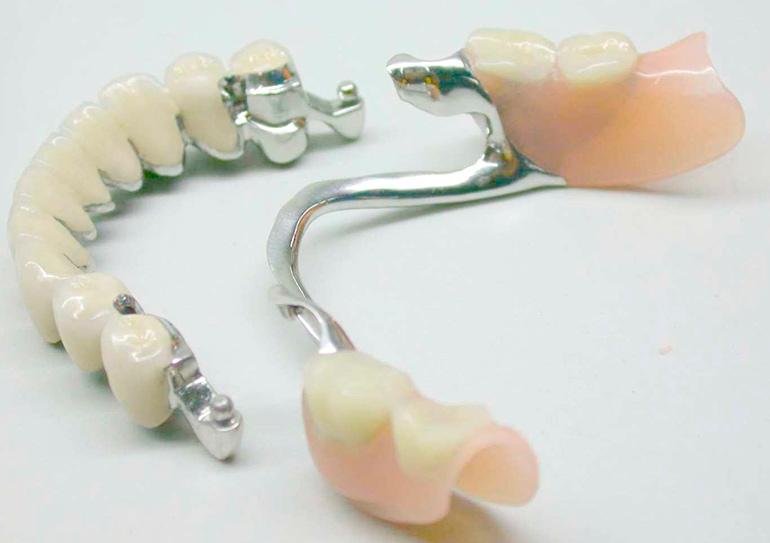 бюгельные зубные протезы фото7