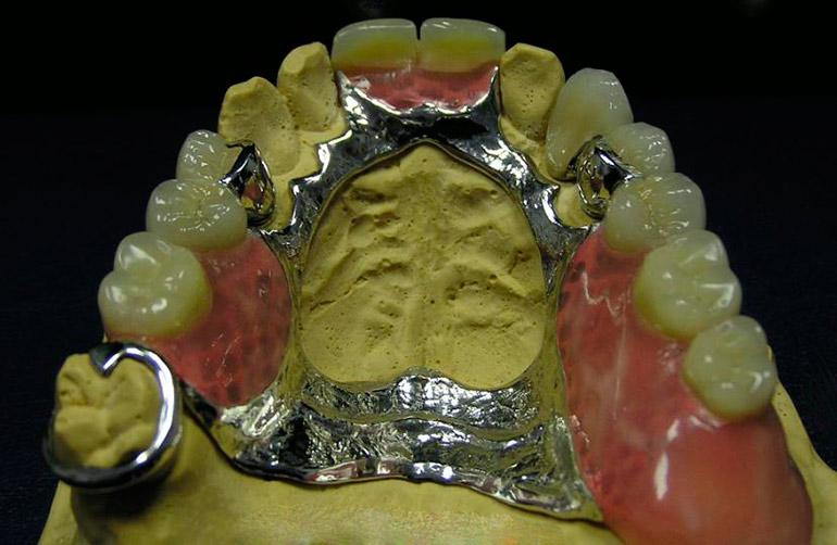 бюгельные протезы зубов фото
