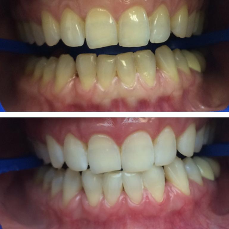 фото отбеливание зубов
