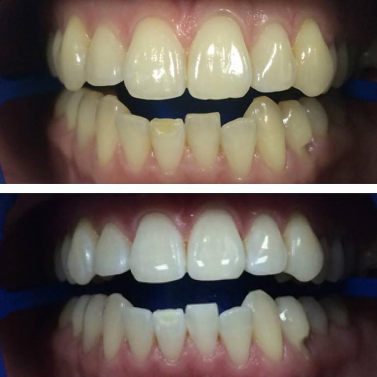 зубное отбеливание фото