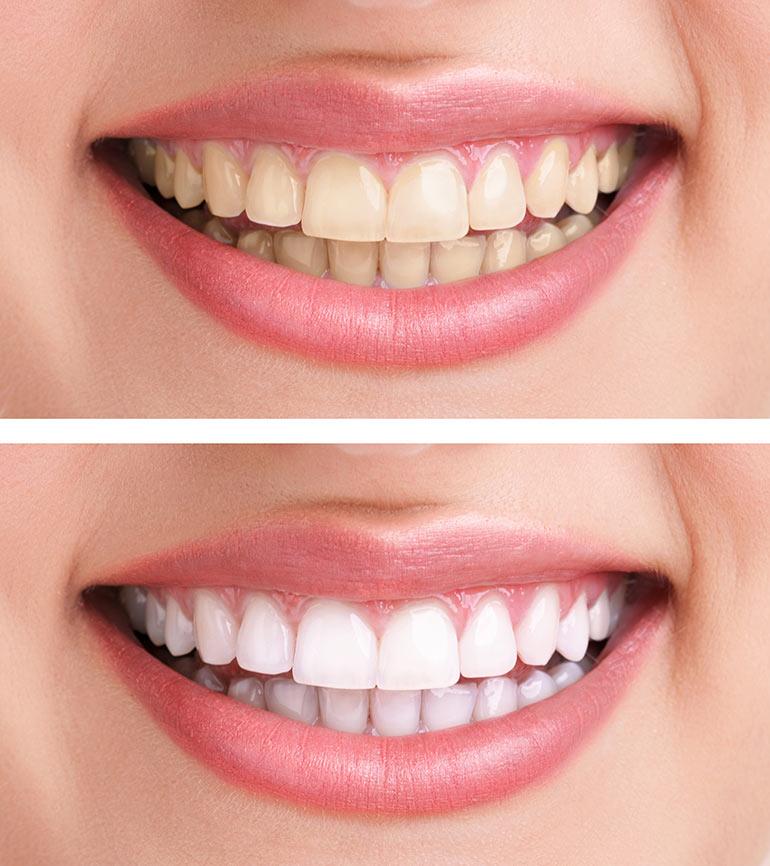 отбеливание зубов лазером фото