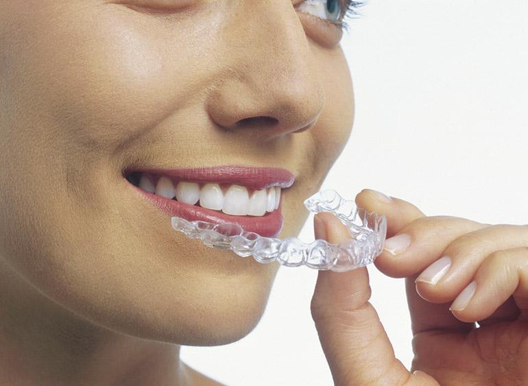 капа для отбеливания зубов фото