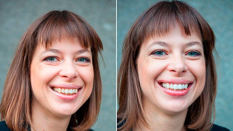 отбелить зубы фото
